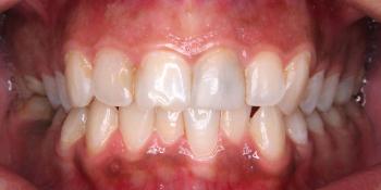 4 керамических винира + отбеливание зубов фото до лечения