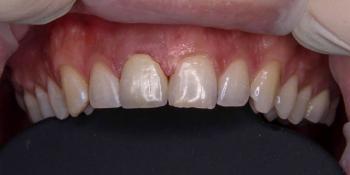 Керамическая коронка на передний зуб фото до лечения