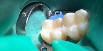 Реставрация жевательной группы зубов фото после лечения