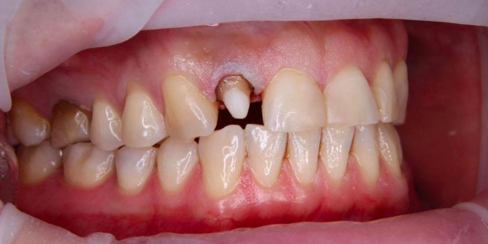 Спасение зуба и восстановление коронкой