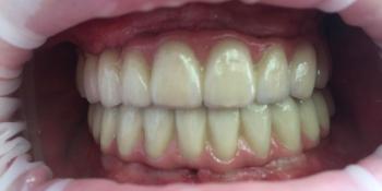 Протезирование металлокерамическими коронками на имплантатах при полном отсутствии зубов фото после лечения