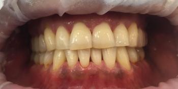 Жалобы на кровоточивость дёсен и зубные отложения фото после лечения
