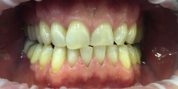 Офисное отбеливание зубов Системой Opalessens  фото до лечения